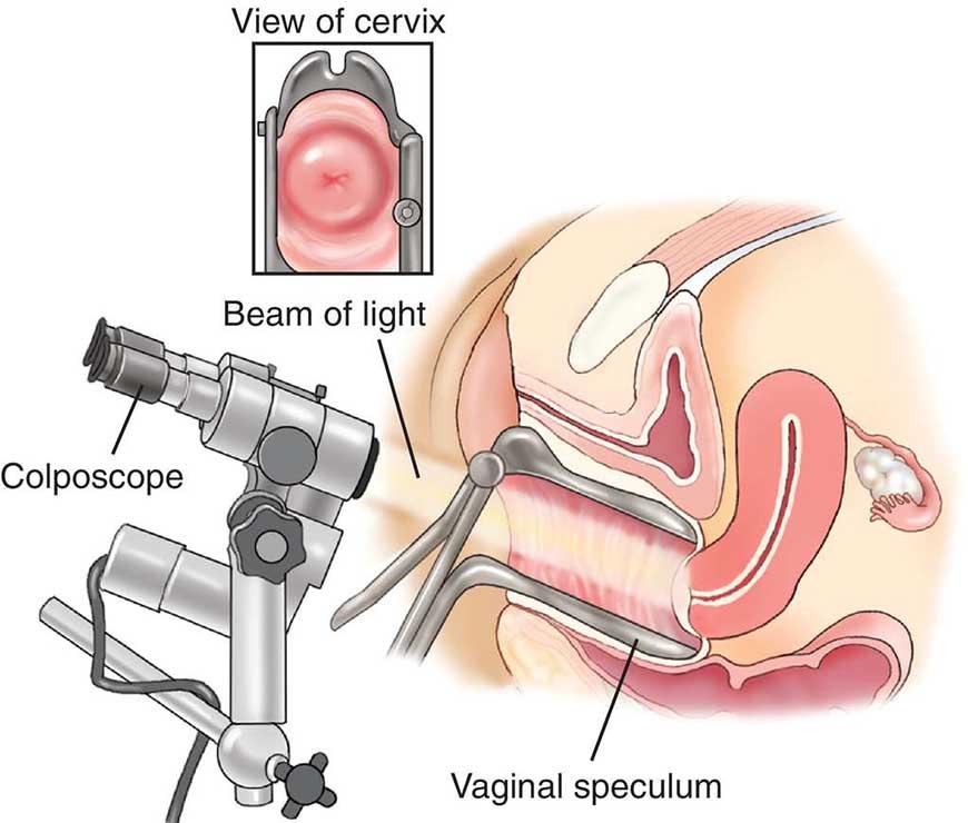 کولپوسکوپی برای زنان