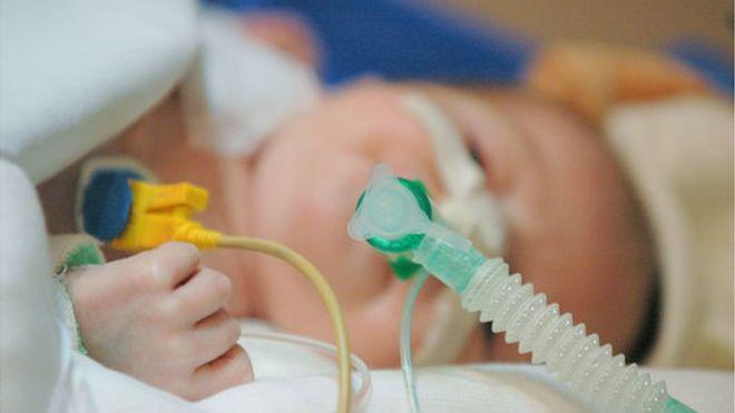 رسیدگی به زایمان های سزارین در بیمارستان کسری چگونه است؟